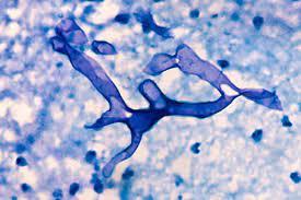 Photo of हिमाचल में ब्लैक फंगस के बाद अब PMIS-C बीमारी की दस्तक, 18 कोरोना प़ॉजिटिव बच्चे संक्रमित